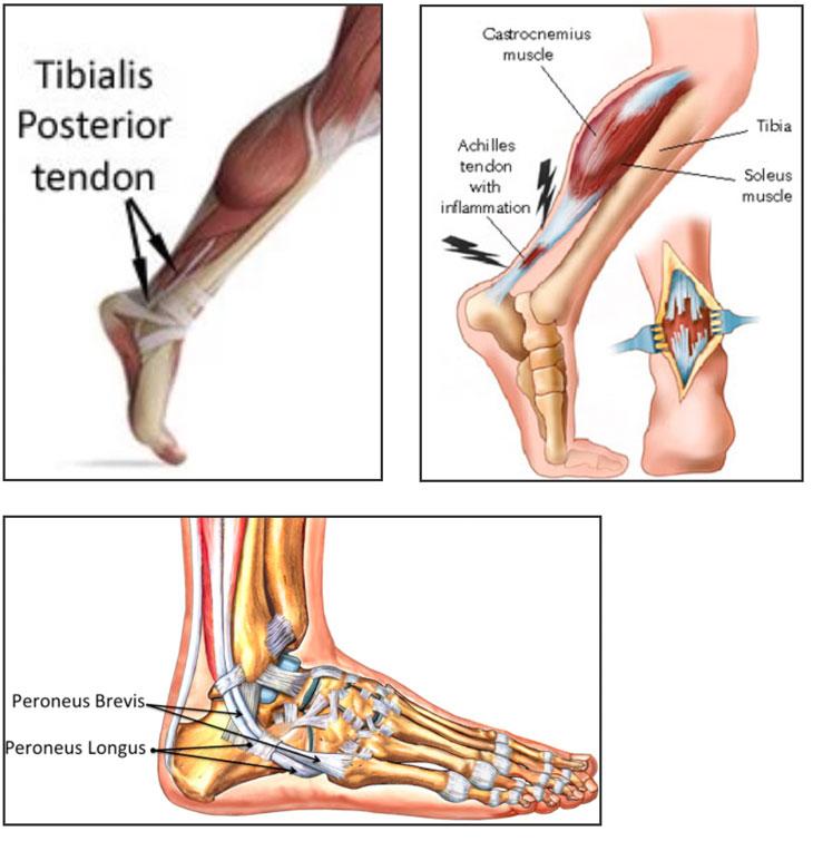 Achilles Tendon Medical Illustration
