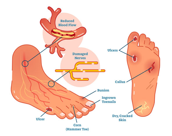Family Footcare of Danbury treats diabetic foot