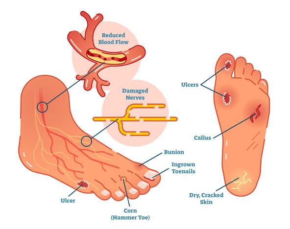 Family Footcare of Danbury treats diabetic foot